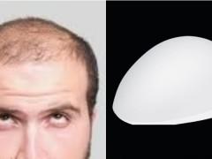 给压力大到「快秃头」的人! LG 推出「改善落髮头盔」,解除你变丑危机!